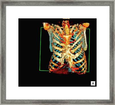 Sunken Chest Framed Print by D & L Graphics