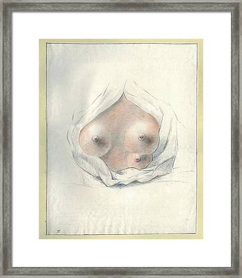Supernumerary Nipple Framed Print by National Library Of Medicine
