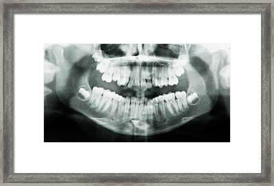 Supernumerary Tooth Framed Print by Kaj R. Svensson