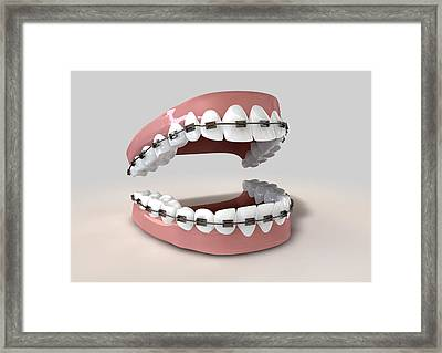 Teeth Fitted With Braces Framed Print by Allan Swart