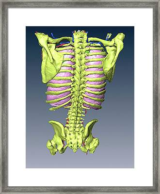 Torso Skeleton And Lungs Framed Print by D & L Graphics