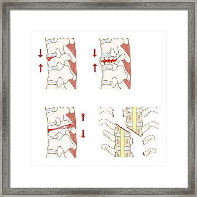 Types Of Spinal Fracture Framed Print by Jeanette Engqvist