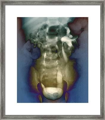 Ureterocoele Framed Print by Zephyr