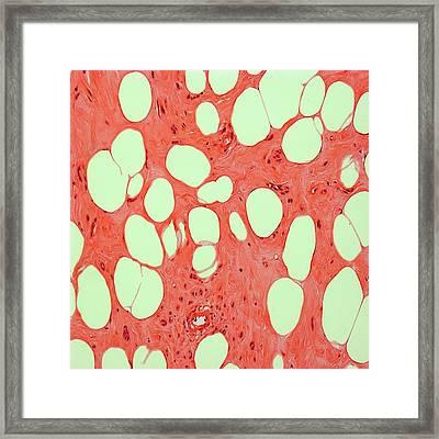 Uterine Fibroid Framed Print by Steve Gschmeissner