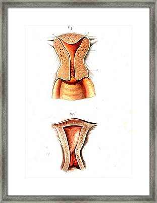 Uterus Anatomy Framed Print by Collection Abecasis