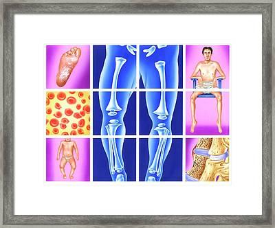 Vitamin Deficiency Symptoms Framed Print by John Bavosi