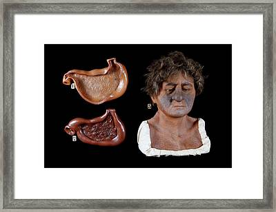 Wax Model Of The Effects Of Alcohol Framed Print by Gregory Davies