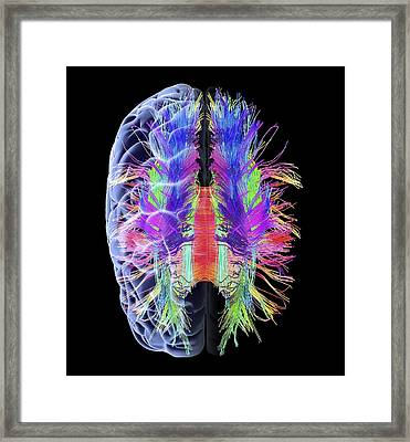 White Matter Fibres And Brain, Artwork Framed Print by Science Photo Library
