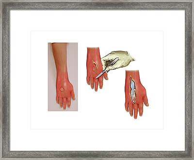Woundcare For Infected Hand Framed Print by John T. Alesi
