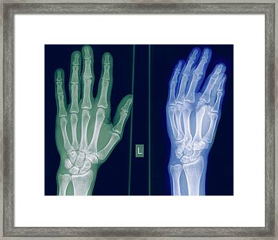 X-ray Of A Healthy Hand Framed Print by Photostock-israel