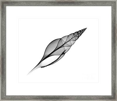 X-ray Of Martins Tibia Framed Print by Bert Myers