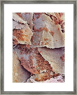 Bacterial Infection Of Nail, Sem Framed Print by Steve Gschmeissner
