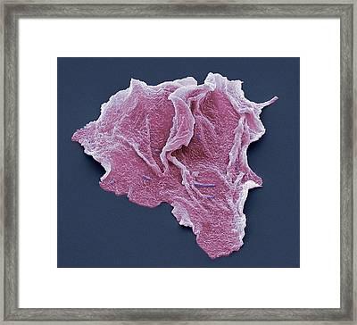 Cheek Squamous Cells, Sem Framed Print by Steve Gschmeissner