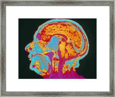 Coloured Mri Brain Scan Of A Pituitary Tumour Framed Print by Mehau Kulyk