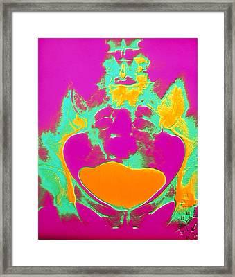 Coloured Urogram Of A Healthy Human Bladder Framed Print by Volker Steger