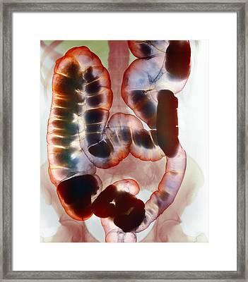 Healthy Large Intestine, Barium X-ray Framed Print by