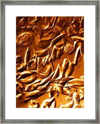 Lm Of Sickle Cell Anemia Framed Print by Science Source