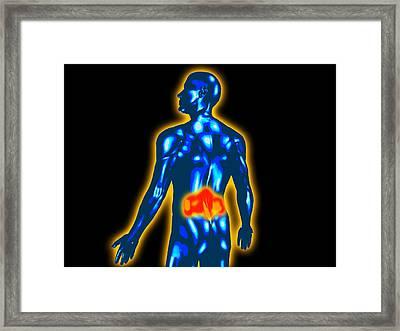 Lower Back Pain Framed Print by Christian Darkin
