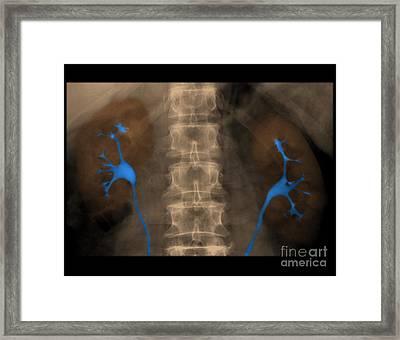 Normal Ivp Framed Print by Medical Body Scans