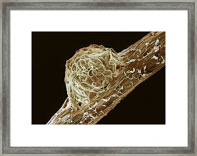 Root Nodule Framed Print by Dr Jeremy Burgess