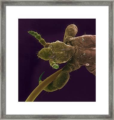 Head Louse, Sem Framed Print by Steve Gschmeissner