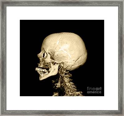 Human Skull Framed Print by Medical Body Scans