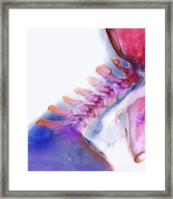 Neck Vertebrae Extended, X-ray Framed Print by