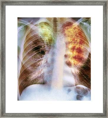 Old And New Tuberculosis, X-ray Framed Print by