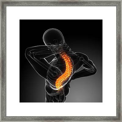 Back Pain, Conceptual Artwork Framed Print by Sciepro
