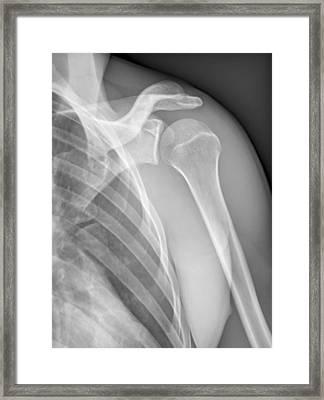 Normal Shoulder, X-ray Framed Print by Zephyr