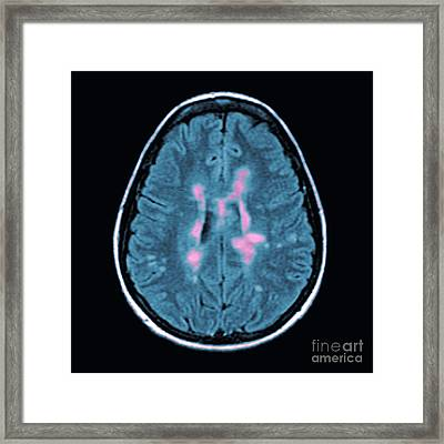 Mri Of Multiple Sclerosis Framed Print by Medical Body Scans