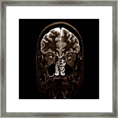 Alien Framed Print by Fine Art  Photography