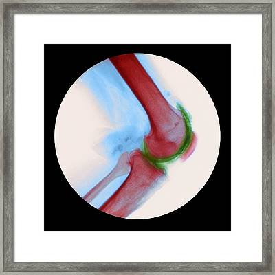 Arthritis Of The Knee, X-ray Framed Print by Cnri