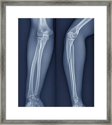 Broken Arm, X-ray Framed Print by Zephyr