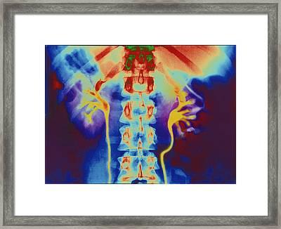 Coloured Urogram X-ray Of Healthy Human Ureters Framed Print by Mehau Kulyk