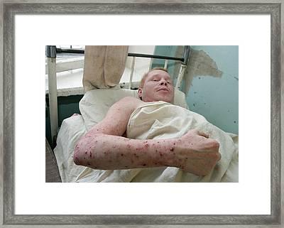 Eczema Skin Condition Framed Print by Ria Novosti