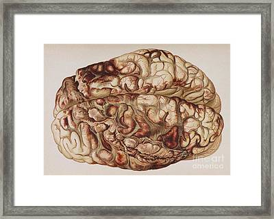 Encircling Gunshot-wound In Brain, 1898 Framed Print by Science Source