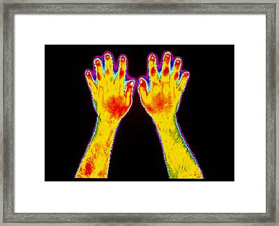 Forearms Framed Print by Dr. Arthur Tucker