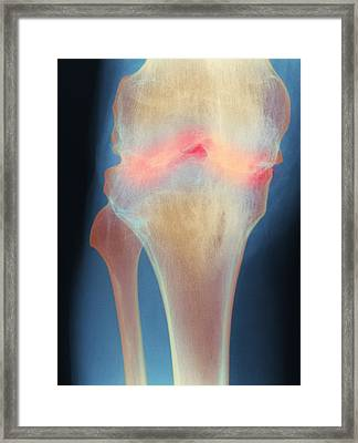 Fused Knee Joint, X-ray Framed Print by