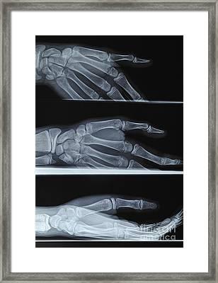 Hand X-ray Framed Print by Sami Sarkis