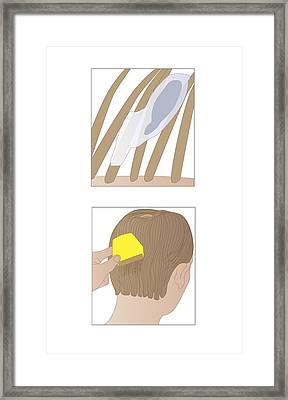 Head Lice, Artwork Framed Print by Peter Gardiner