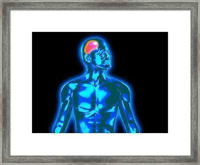 Headache Framed Print by Christian Darkin
