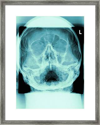 Healthy Skull, X-ray Framed Print by Miriam Maslo