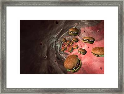 High Cholesterol Framed Print by MedicalRF.com