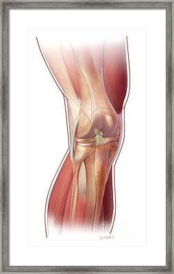 Knee Anatomy Framed Print by John M Daugherty and Photo Researchers