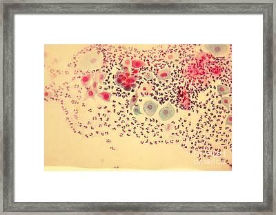 Pap Smear Framed Print by AFIP / Science Source