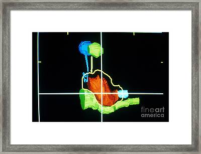 Proton Beam From Brain During Ct Scan Framed Print by Science Source
