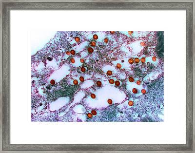 Rift Valley Fever Virus, Tem Framed Print by London School Of Hygiene & Tropical Medicine