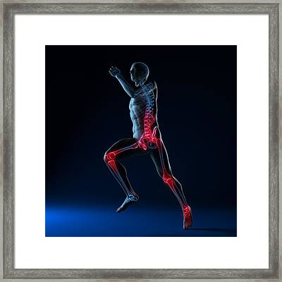 Running Injuries, Conceptual Artwork Framed Print by Sciepro