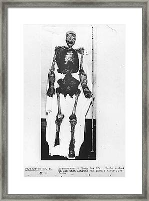 Skeletal Reconstruction, Buck Ruxton Framed Print by Science Source